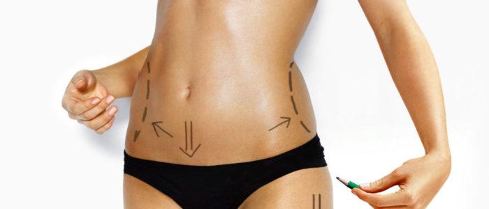 Abdominoplastia en Tenerife
